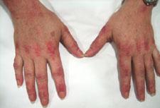 reason for skin peeling on fingers
